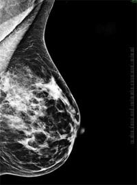 A megelőzésben fontos szerepet játszanak a vizsgálatok (emlő ultrahang 4b519a1481