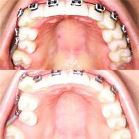 A növekvő esztétikai igényeknek megfelelően a felnőtt fogszabályozás egyre  elterjedtebb felnőtt korban. Egy szép mosoly d7879be90a